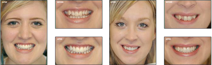 Cfast Cosmetic Tooth Alignment